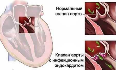 Код мкб молочницы — Женское здоровье || Молочница по код мкб 10